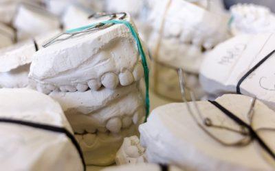Zła metoda odżywiania się to większe niedobory w zębach a także ich utratę
